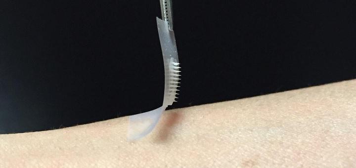 Smart Insulin Patch 1