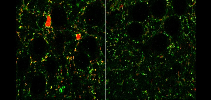 Researchers link receptors in brain to autism and schizophrenia