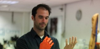 Open Bionics lands £2000 James Dyson Award for its 3D-printed prosthetic hand